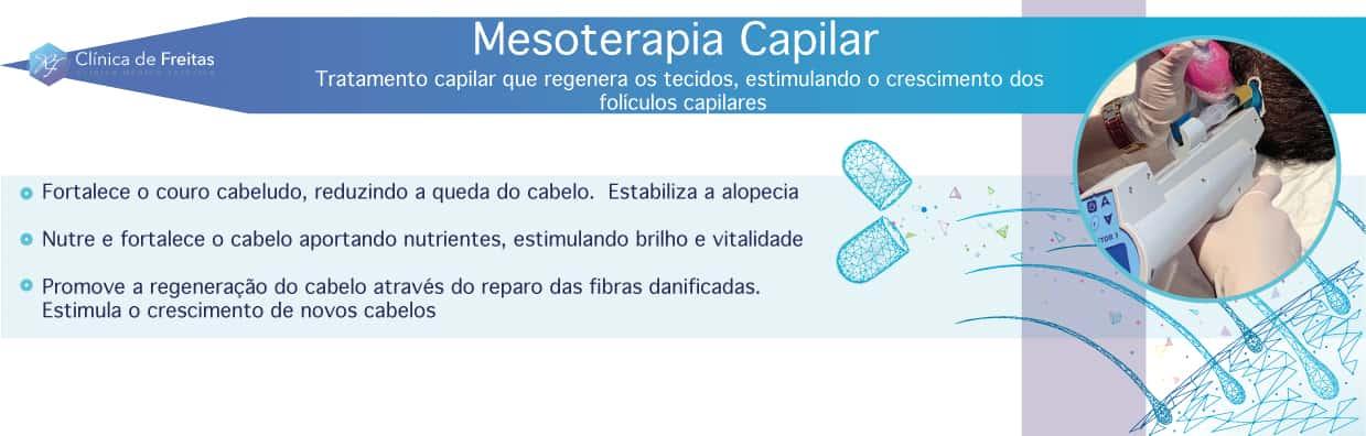 Mespterapia capilar