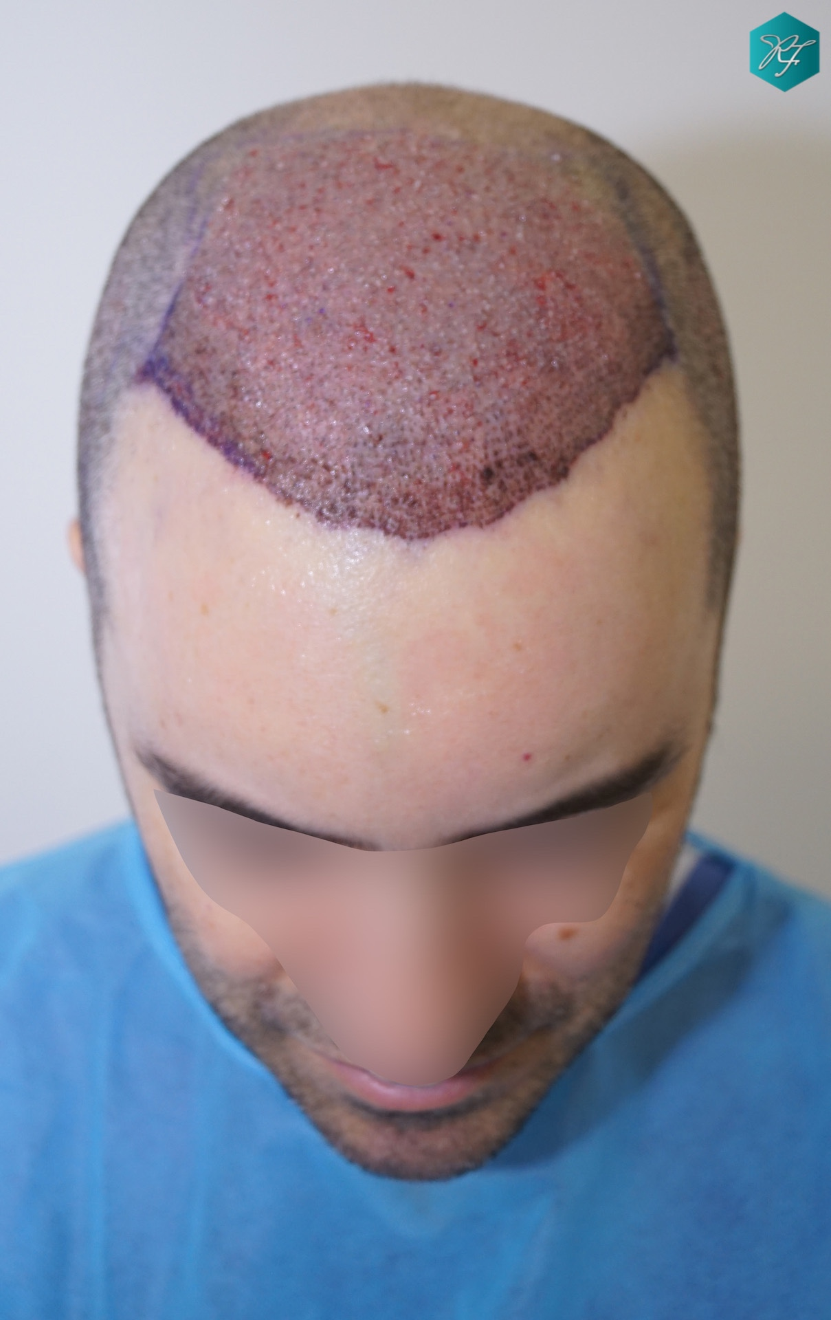 HAARTRANSPLANTION