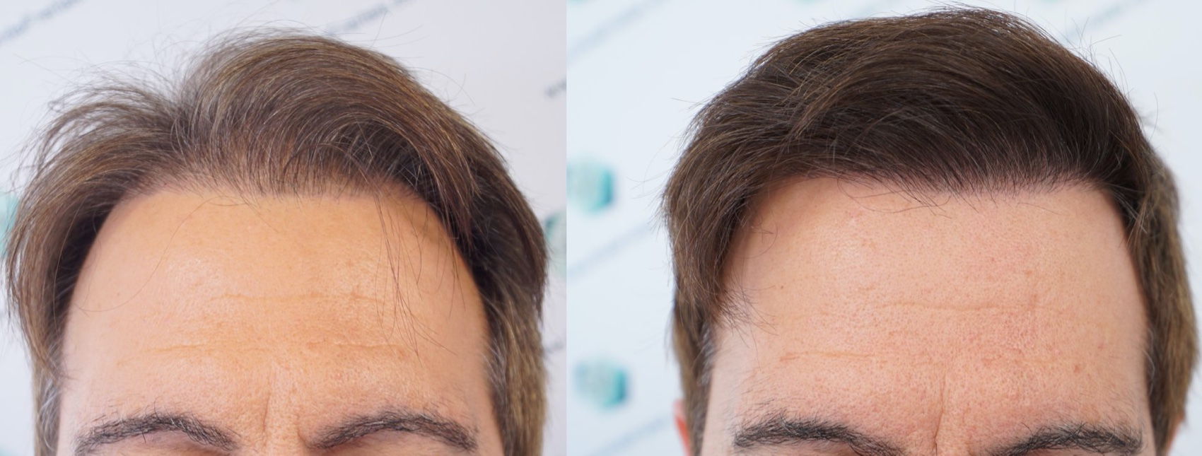 HAIR TRANSPLANT COMPARISON BEFORE AND AFTER