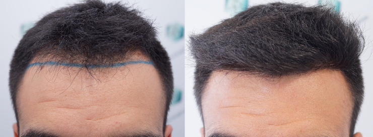 Hair Transplant FUE - 2,804 Follicles (6,822 Hair)