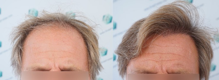 Hair graft Technique FUE-2942 grafts (6642 hairs)