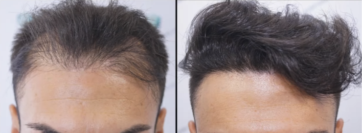 Hair Graft Technique FUE 2.312 Follicles (3429 Hair)