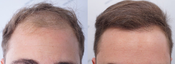 FUE Hair Transplant 3003 Follicles (6479 hairs)