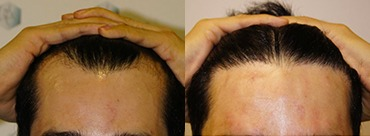 Hair Transplant 1645 grafts (3820 hairs)