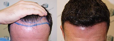 Hair Transplant 1804 Grafts (3746 hairs)