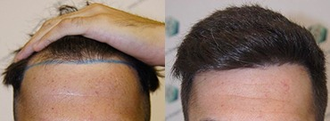 Hair Transplant 1827 Grafts (4048 hairs)