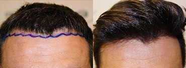 Hair Transplant 1870 Grafts (4013 hair)