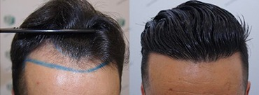 Hair Transplant 2077 Grafts (5647 hairs)