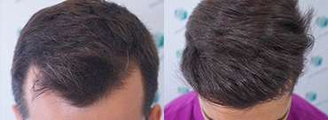 Hair transplant 2319 Grafts (6194 Hair)