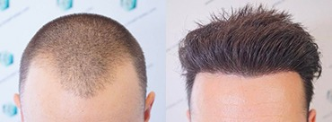 Hair Transplant 2423 Grafts (6189 hairs)
