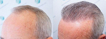 Hair Trasplant 2625 Grafts (6103 Hairs)