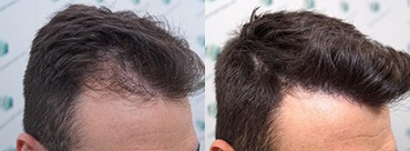 Hair trasplant 271 grafts (5988 hairs)