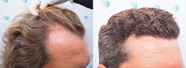 Hair Transplant 3164 Grafts (7466 hairs)