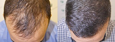 Hair Transplant 2911 grafts (7057 hairs)