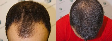 Hair Transplant 3018 Grafts (6498 hairs)