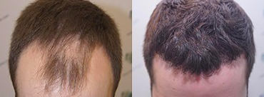 Hair Transplant 3124 Grafts (8727 hairs)