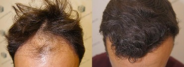Hair Transplant 3183 Grafts (7688 hairs)