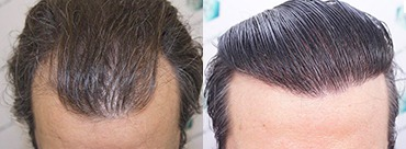 Hair Transplant 3302 Grafts (7603 hairs)