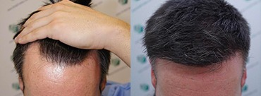 Hair Transplant 1854 Grafts (4196 hairs)