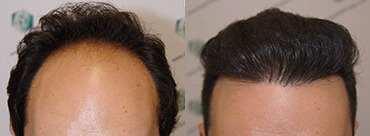 Hair Transplant 3681 grafts (8585 hairs)