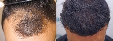 Hair Transplant 4281 Grafts (10946 Hairs)