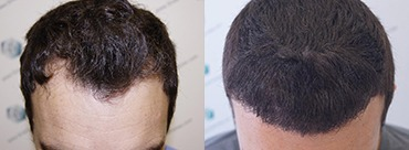 Hair trasplant 2094 grafts (4970 hairs)