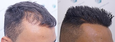 Hair trasplant 2120 grafts (5678 hairs)