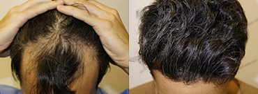 Hair trasplant 2409 grafts (5238 hairs)