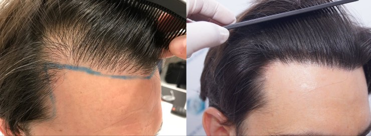 Hair transplant 1916 grafts (4597 hairs)