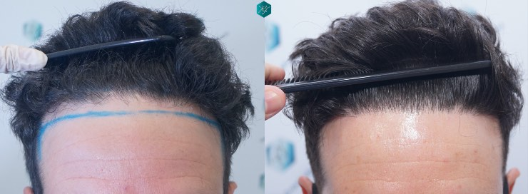 Hair transplant 1.873 grafts (4.766 hairs)